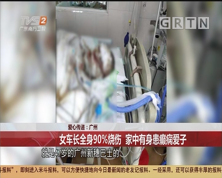 愛心傳遞:廣州 女車長全身90%燒傷 家中有身患癲癇愛子