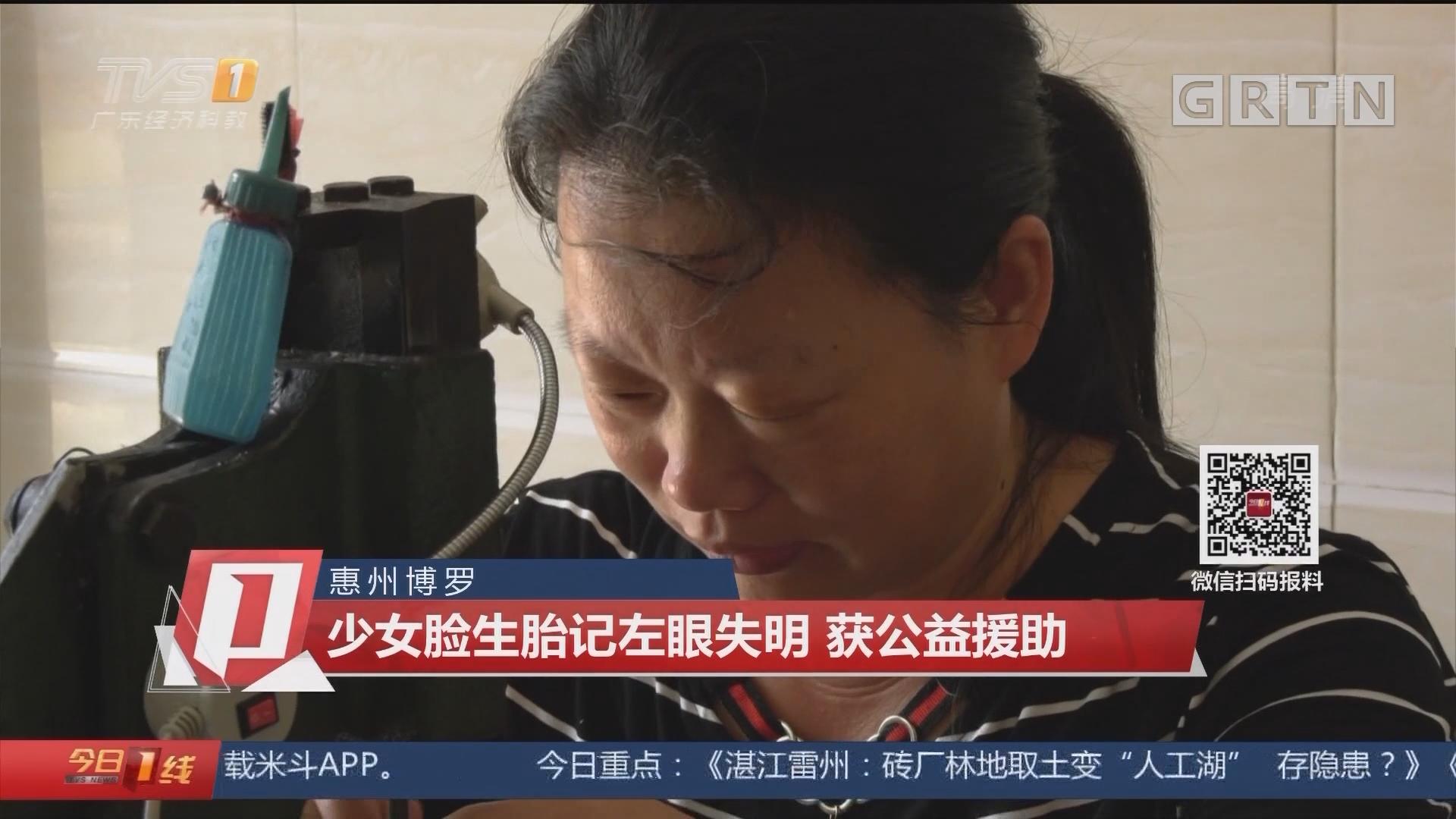 惠州博罗:少女脸生胎记左眼失明 获公益援助