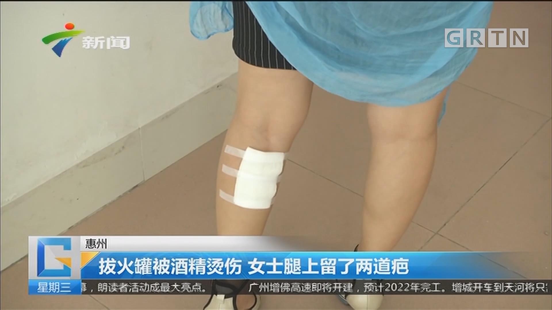 惠州:拨火罐被酒精烫伤 女士腿上留了两道疤
