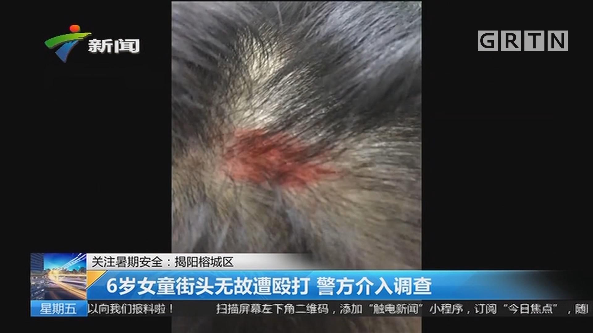 关注暑期安全:揭阳榕城区 6岁女童街头无故遭殴打 警方介入调查