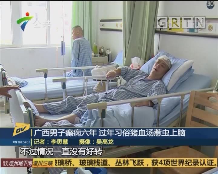 广西男子癫痫六年 过年习俗猪血汤惹虫上脑
