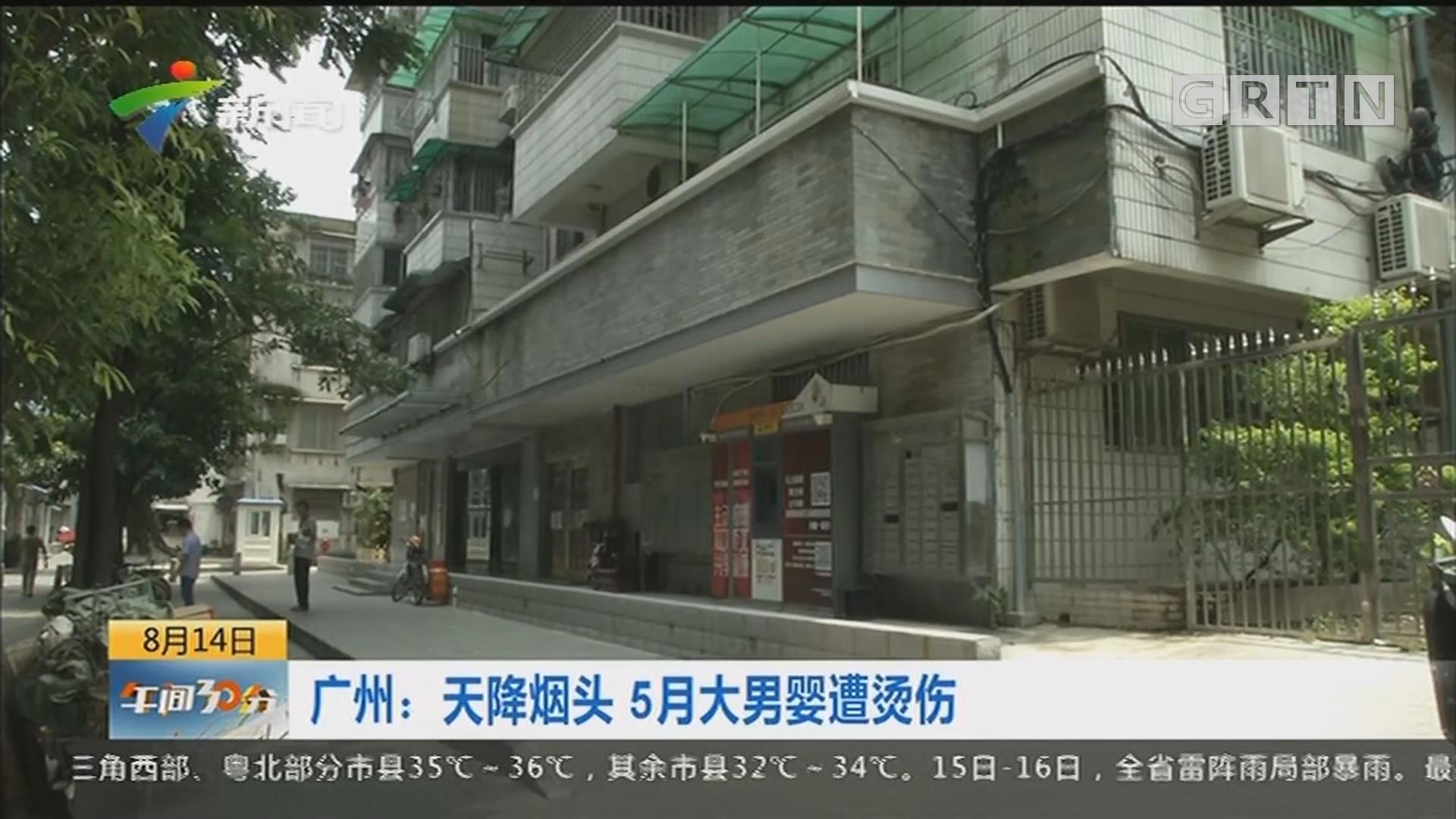 广州:天降烟头 5月大男婴遭烫伤