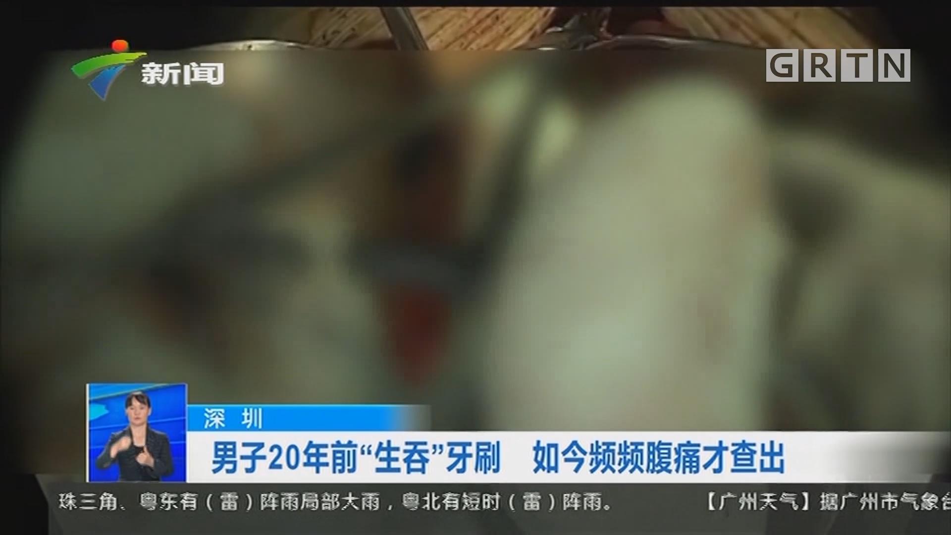 """深圳:男子20年前""""生吞""""牙刷 如今频频腹痛才查出"""