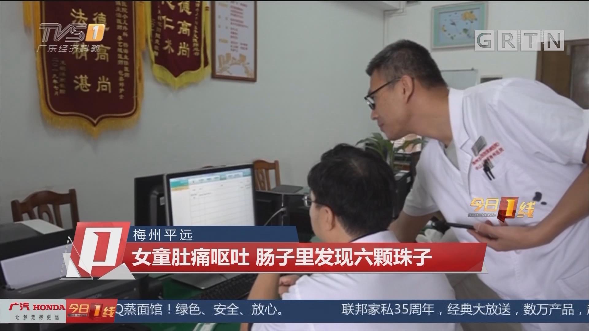 梅州平远:女童肚痛呕吐 肠子里发现六颗珠子