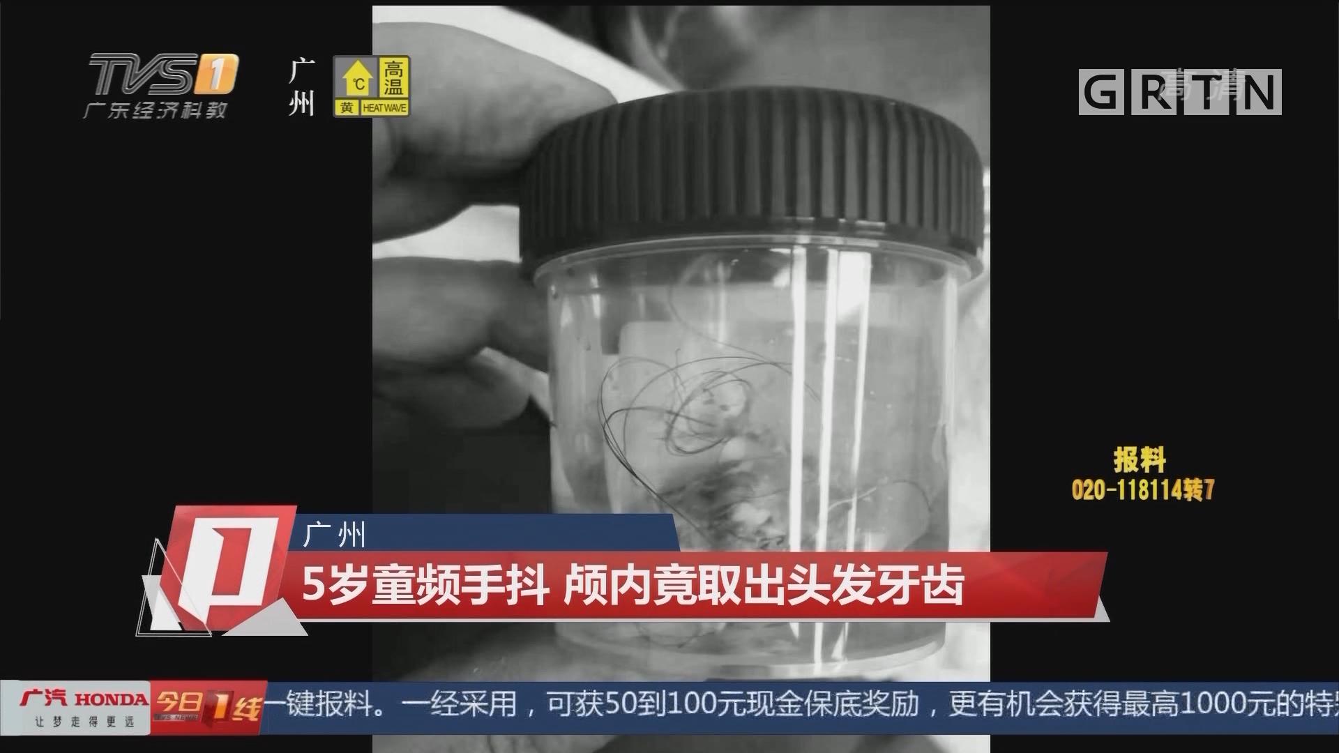 广州 5岁童频手抖 颅内竟取出头发牙齿