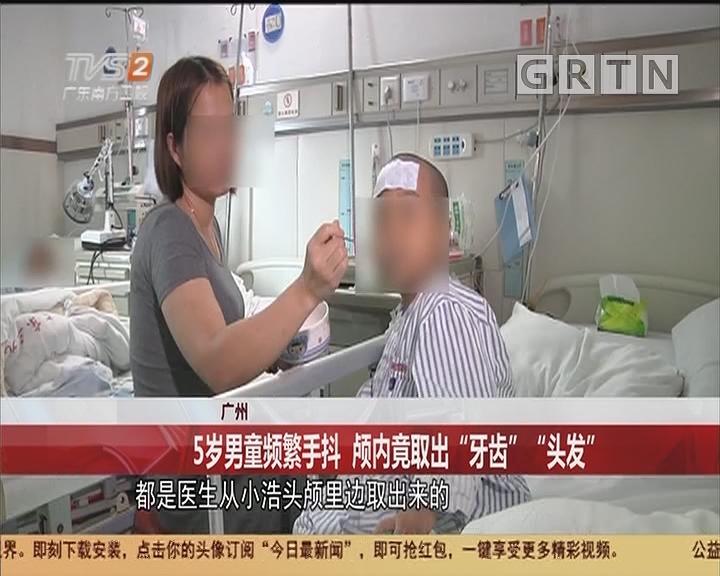 """广州:5岁男童频繁手抖 颅内竟取出""""牙齿""""""""头发"""""""