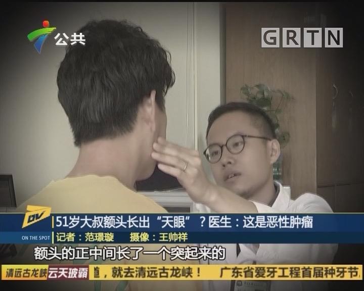 """(DV现场)51岁大叔额头长出""""天眼""""?医生:这是恶性肿瘤"""
