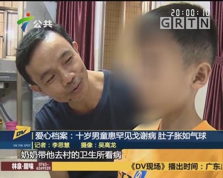 (DV现场)爱心档案:十岁男童患罕见戈谢病 肚子胀如气球