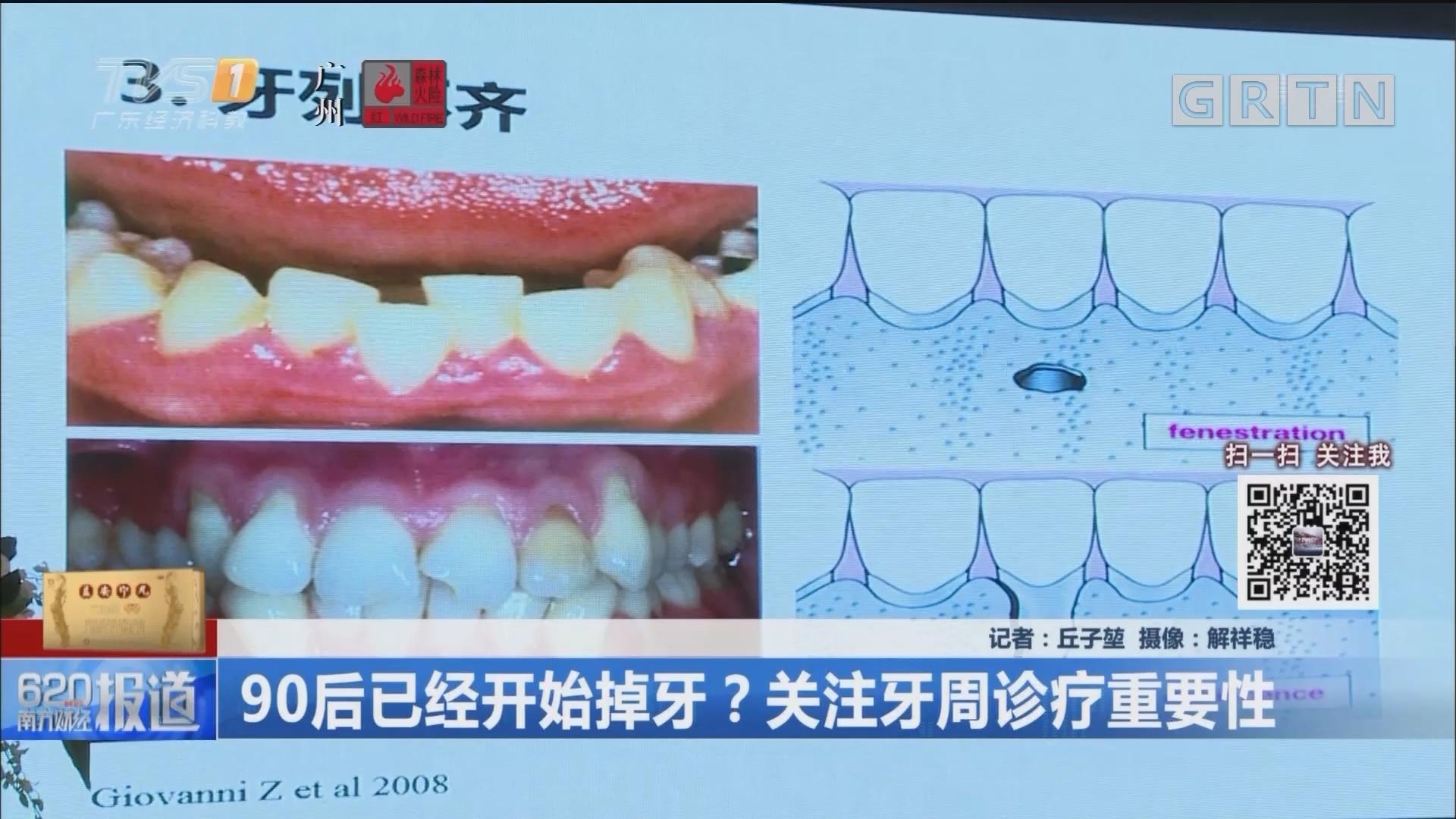 90后已经开始掉牙?关注牙周诊疗重要性