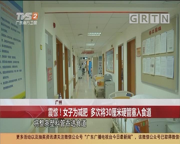 广州:震惊!女子为减肥 多次将30厘米硬管塞入食道