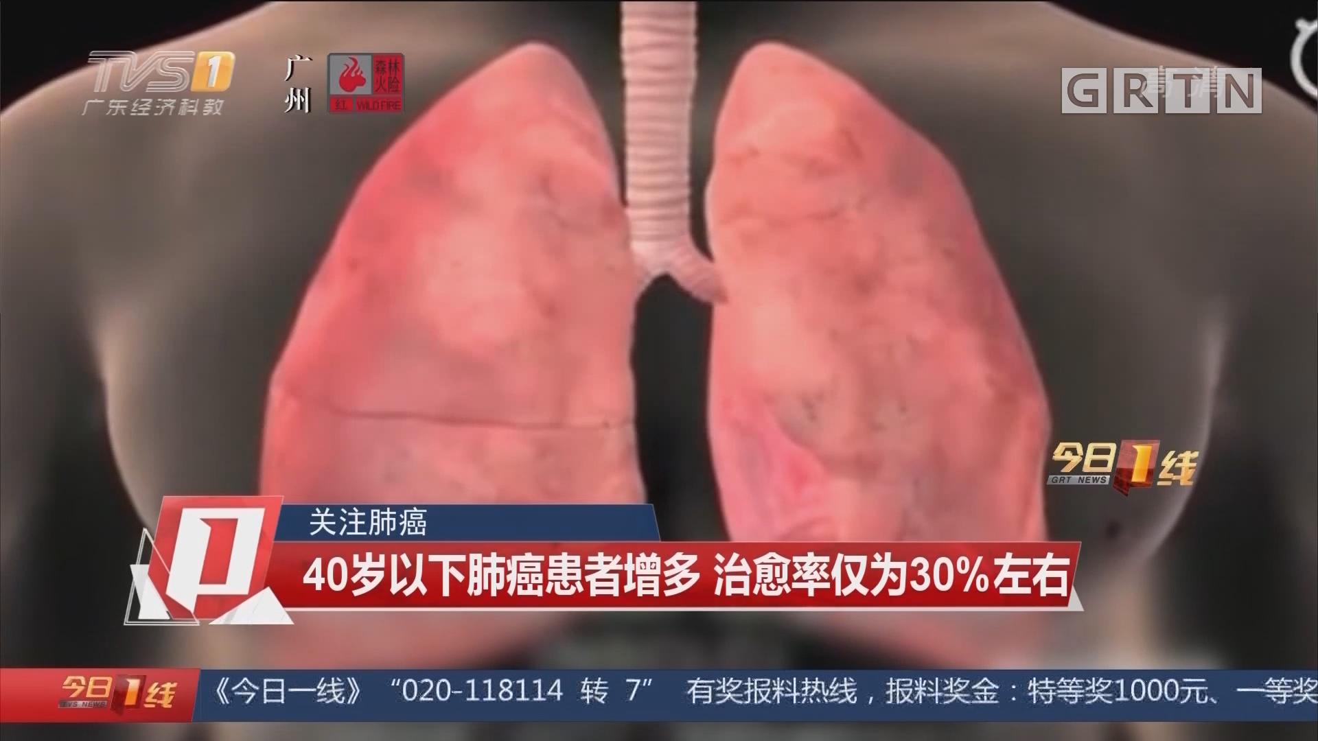 关注肺癌:40岁以下肺癌患者增多 治愈率仅为30%左右