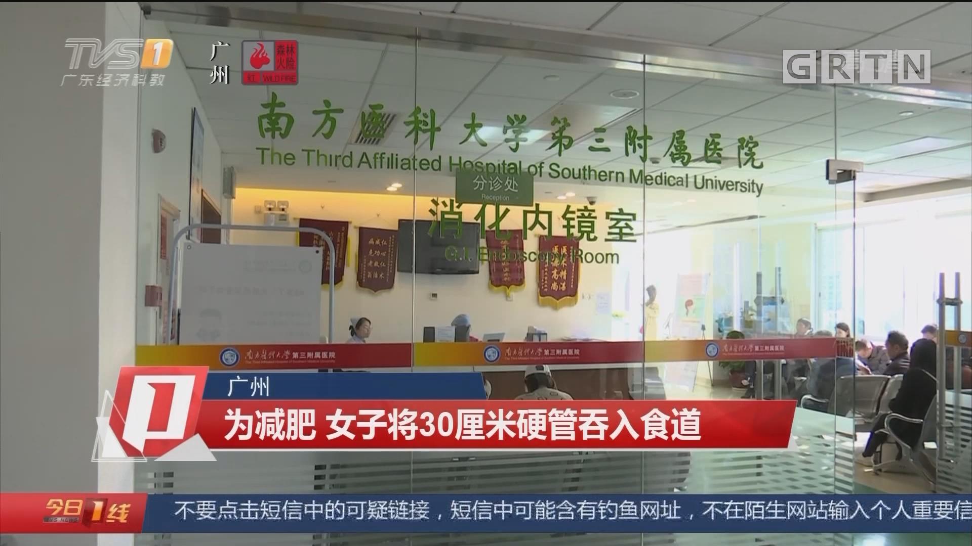 广州 为减肥 女子将30厘米硬管吞入食道