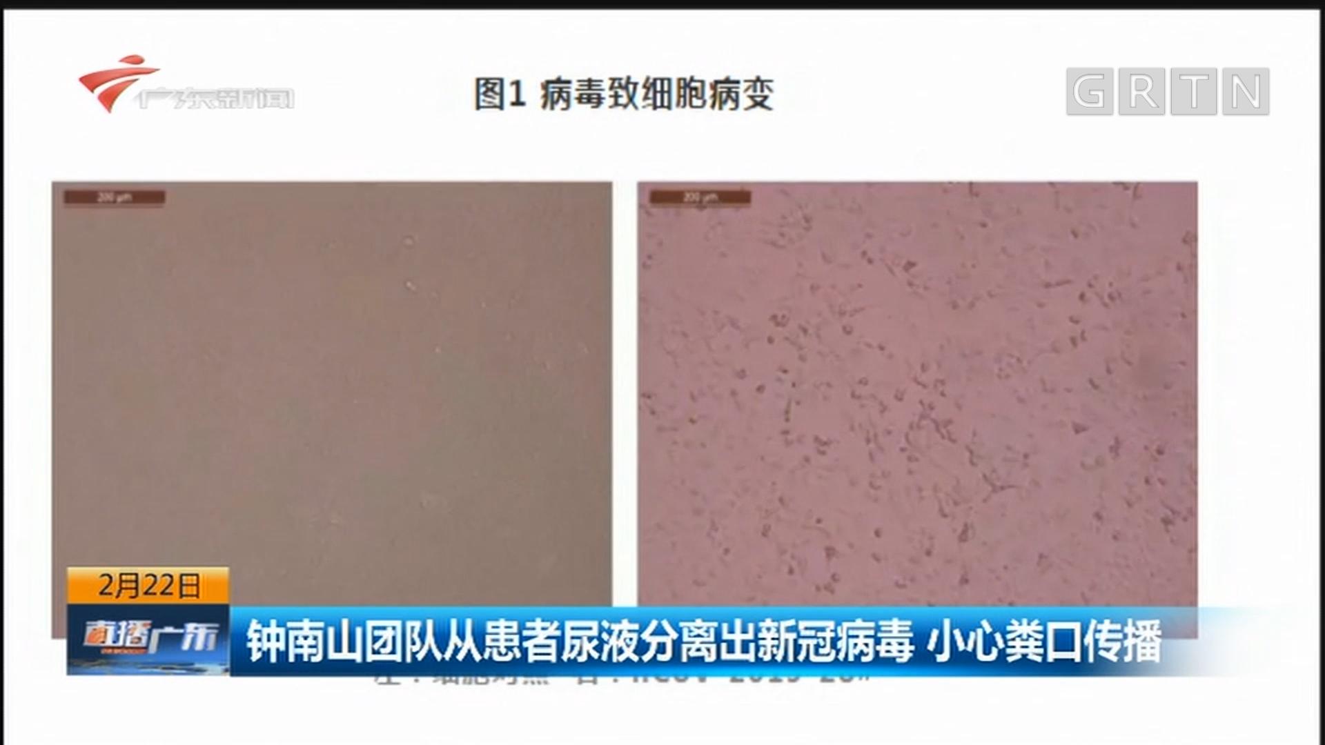 钟南山团队从患者尿液分离出新冠病毒 小心粪口传播