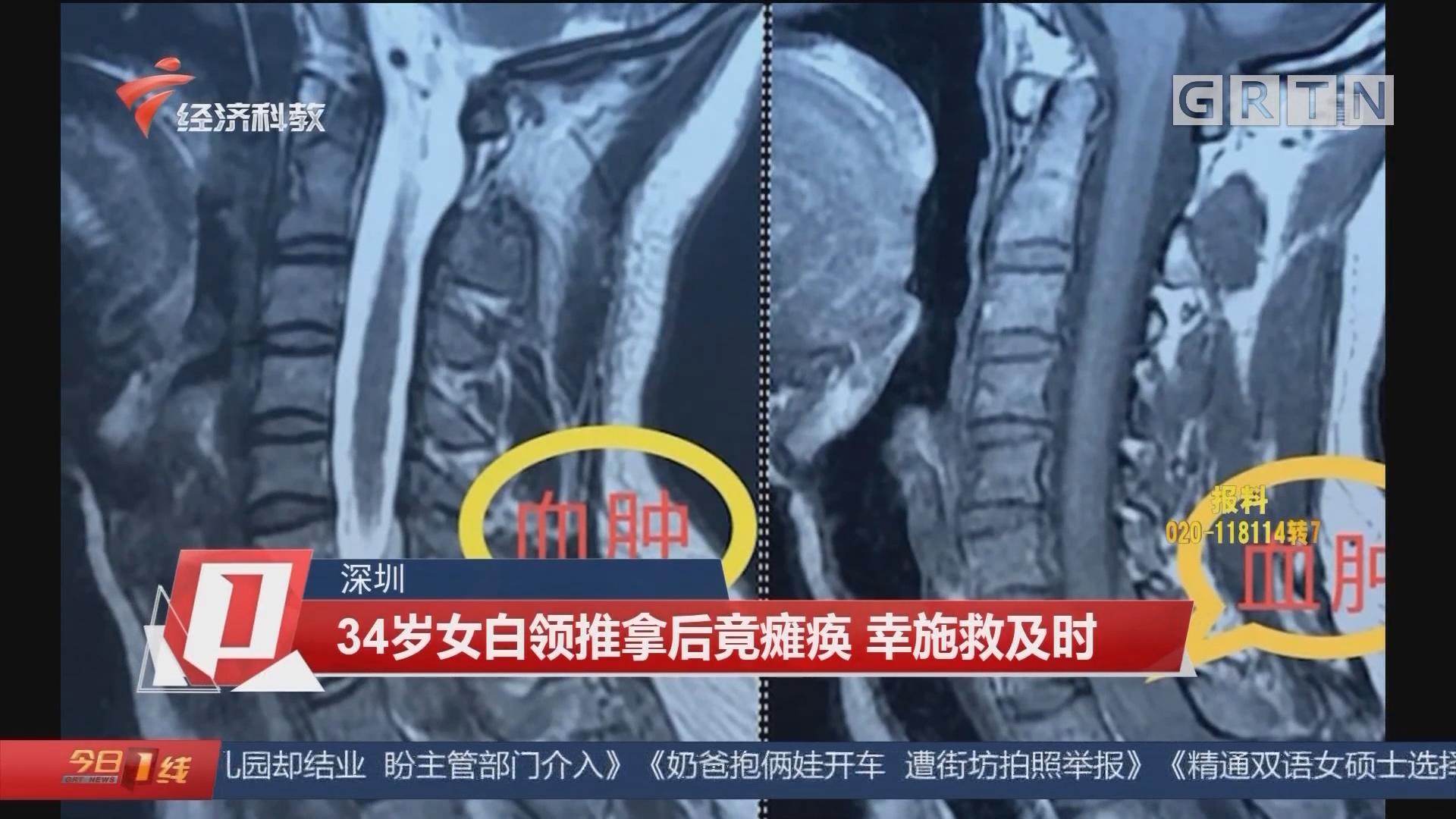 深圳 34歲女白領推拿后竟癱瘓 幸施救及時