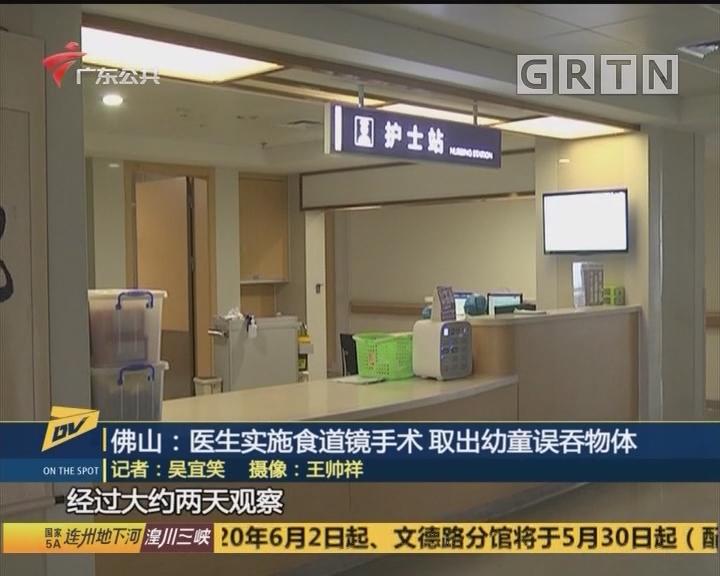 佛山:醫生實施食道鏡手術 取出幼童誤吞物體