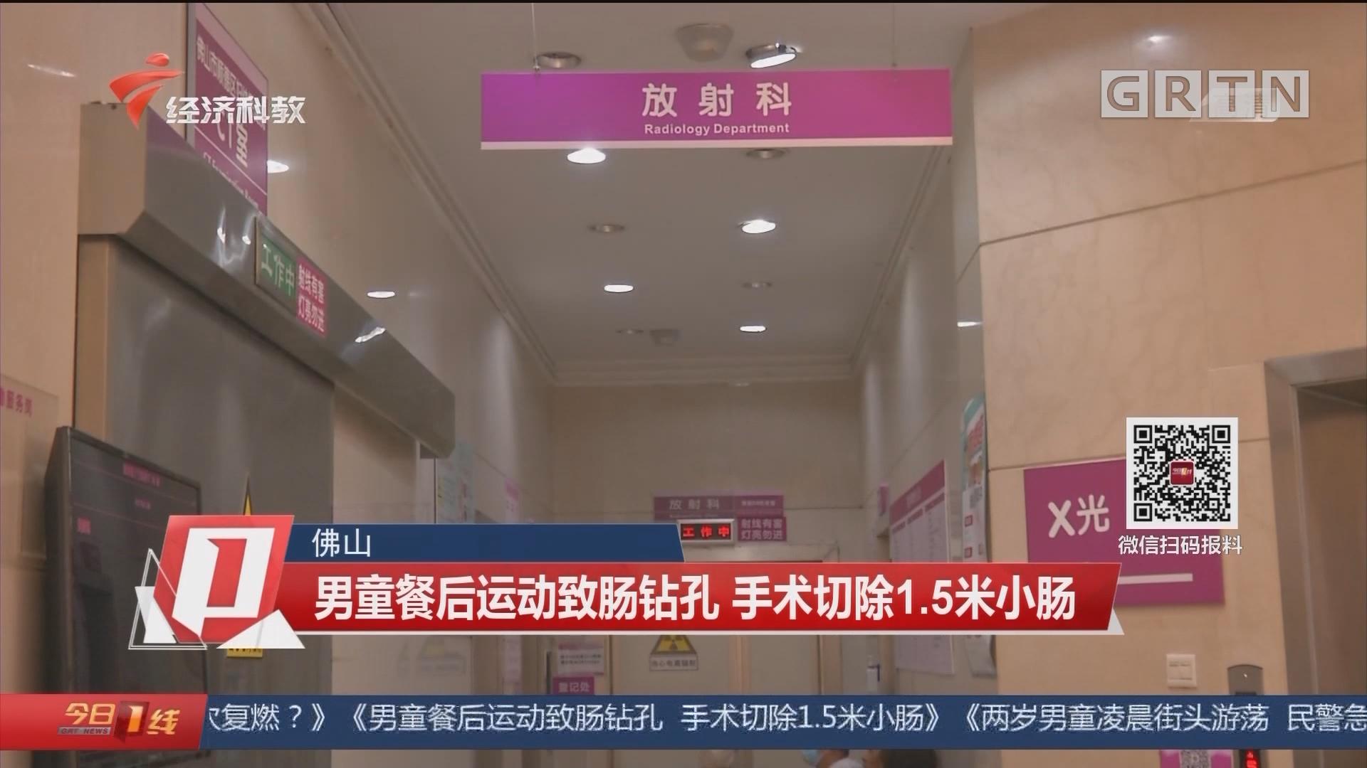 佛山:男童餐后运动致肠钻孔 手术切除1.5米小肠