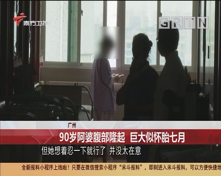 广州 90岁阿婆腹部隆起 巨大似怀胎七月