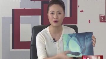 [2017-08-30]百医百顺:这样的堵你怕吗