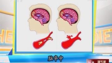 [2017-09-20]百医百顺:高血压易引发脑出血