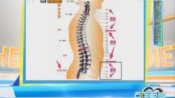 [2017-11-01]百医百顺:关注坐骨神经痛