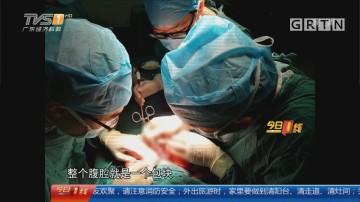 东莞:婴儿腹部肿涨 原来是畸胎瘤