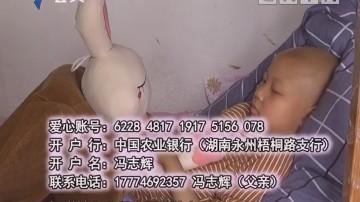 爱心档案:8岁女童腰长肉瘤 母亲街头求救