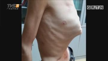 广州:男子腰围十八寸 脏器移位险要命
