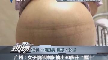 """广州:女子腹部肿胀 抽出30多升""""墨汁"""""""