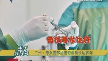 广州:母女面部抽搐眼皮跳长达多年