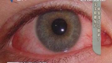 [2019-01-08]生活计仔多:健康有料:宝宝眼睛发红 就是得了红眼病?