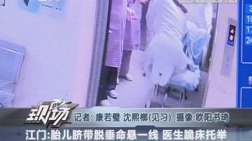 江门:胎儿脐带脱垂命悬一线 医生跪床托举