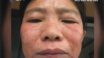 街坊投诉:去美容院做祛斑 结果得了皮肤病