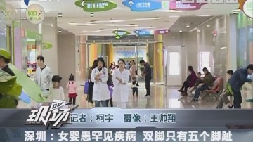 深圳:女婴患罕见疾病 双脚只有五个脚趾