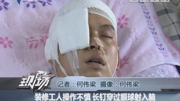 装修工人操作不慎 长钉穿过眼球射入脑
