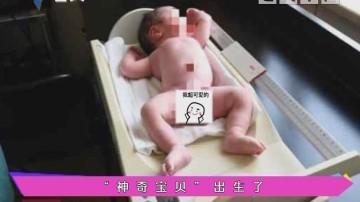 """健康有料:""""神奇宝贝""""出生了"""