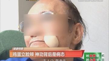 健康特搜:鸡蛋立脸颊 神功背后是病态