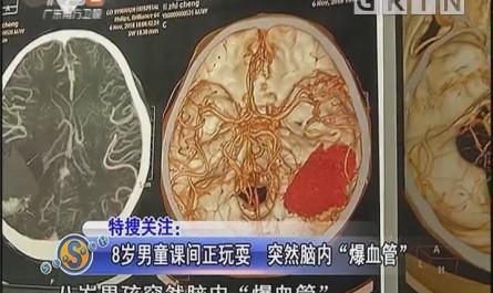 """8岁男童课间正玩耍 突然脑内""""爆血管"""""""