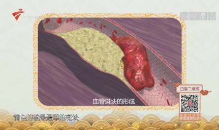 [HD][2018-12-07]健康有道:什么是血管斑块