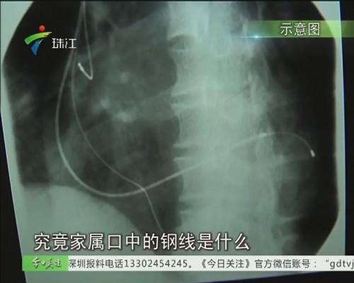 """湛江:心脏手术后死亡 尸检拿出""""钢丝""""?"""