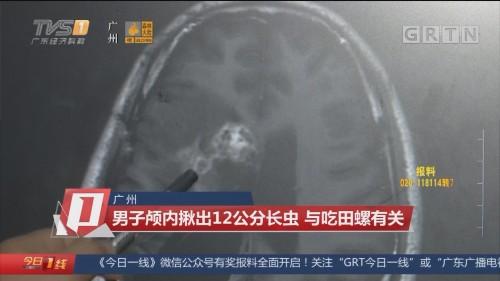 广州:男子颅内揪出12公分长虫 与吃田螺有关