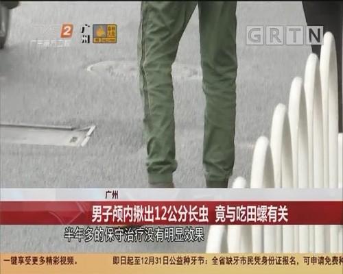 广州 男子颅内揪出12公分长虫 竟与吃田螺有关