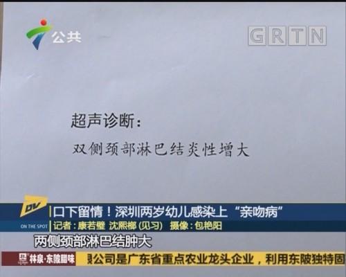 "(DV现场)口下留情!深圳两岁幼儿感染上""亲吻病"""