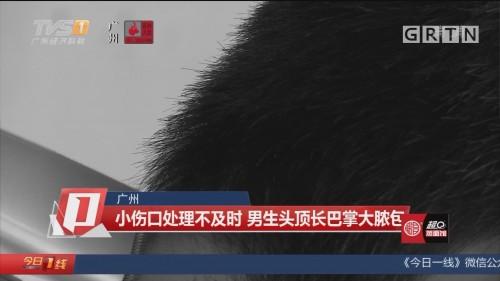 广州:小伤口处理不及时 男生头顶长巴掌大脓包