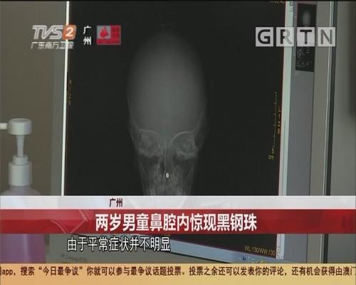 广州 两岁男童鼻腔内惊现黑钢珠