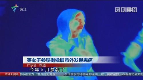 英女子参观摄像展意外发现患癌