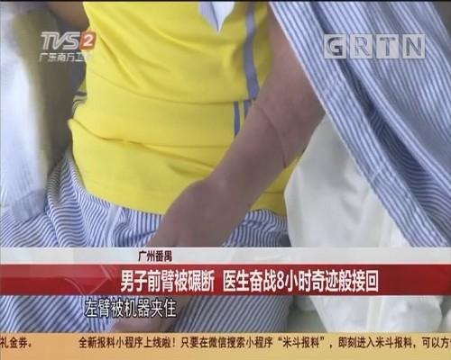 广州番禺:男子前臂被碾断 医生奋战8小时奇迹般接回