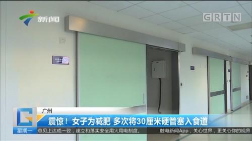 广州 震惊!女子为减肥 多次将30厘米硬管塞入食道