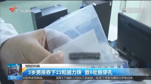 危险的玩具:3岁男孩吞下22粒磁力珠 致6处肠穿孔