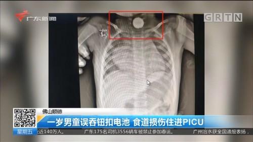 佛山顺德:一岁男童误吞钮扣电池 食道损伤住进PICU