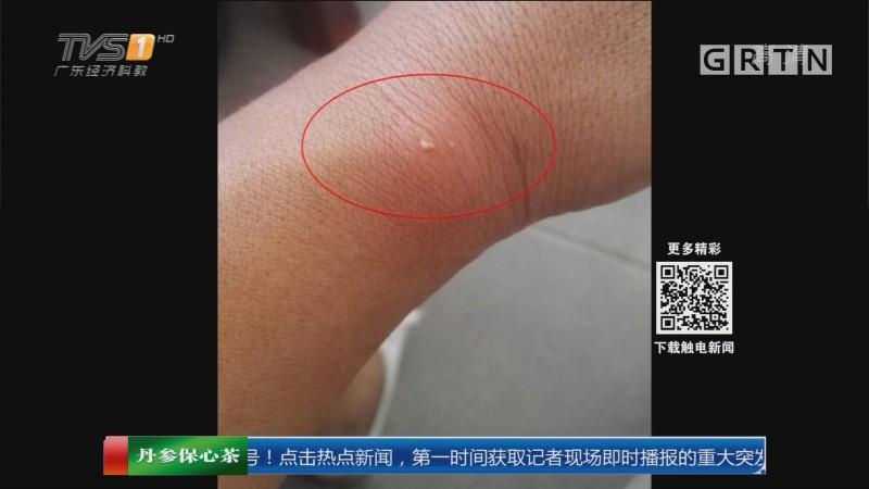 汕尾城区:红火蚁肆虐 记者被咬伤后化脓